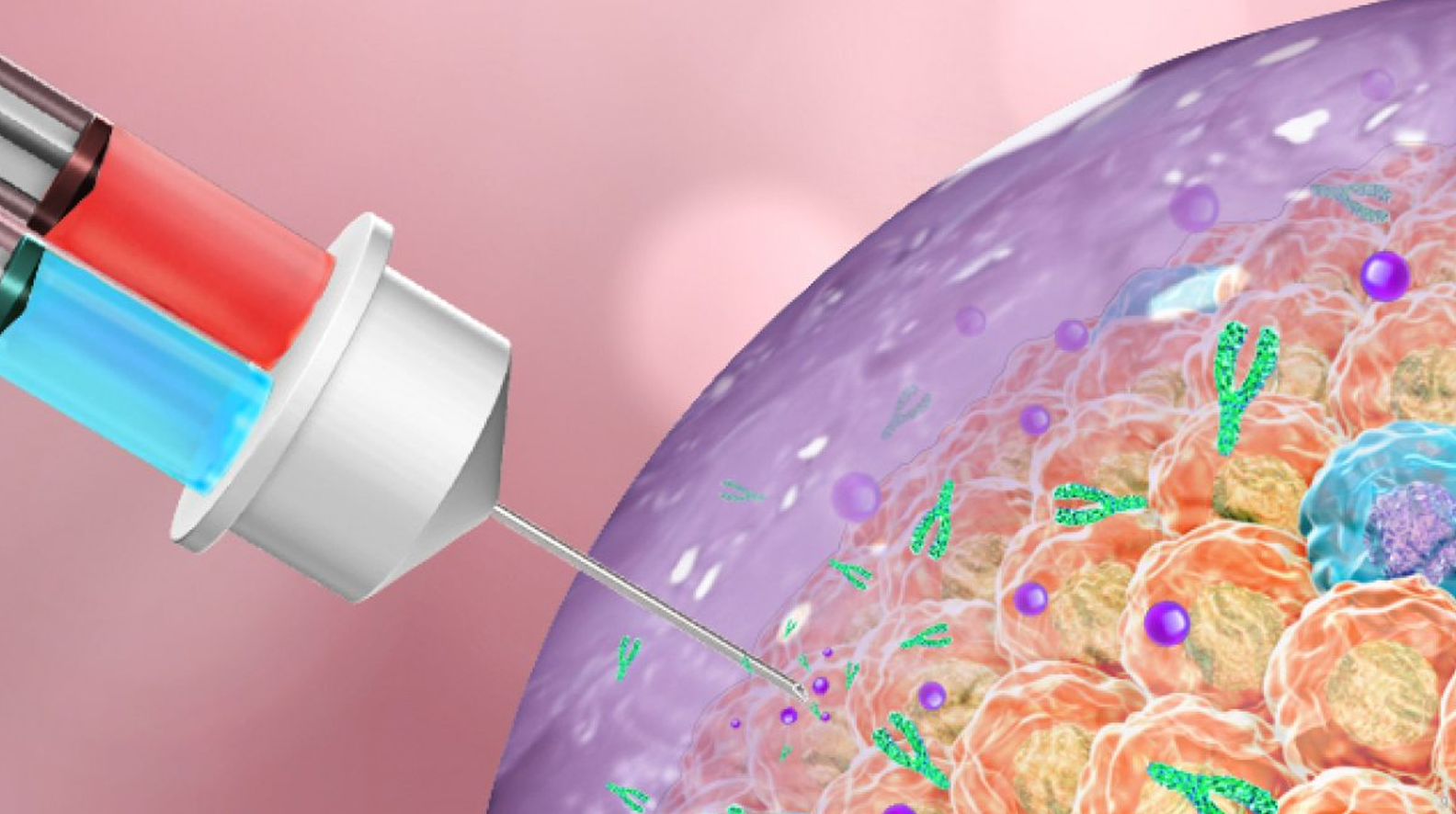 When injected into tumors, this therapy forms a gel to attack cancer cells. (Graphic by Gu Lab)